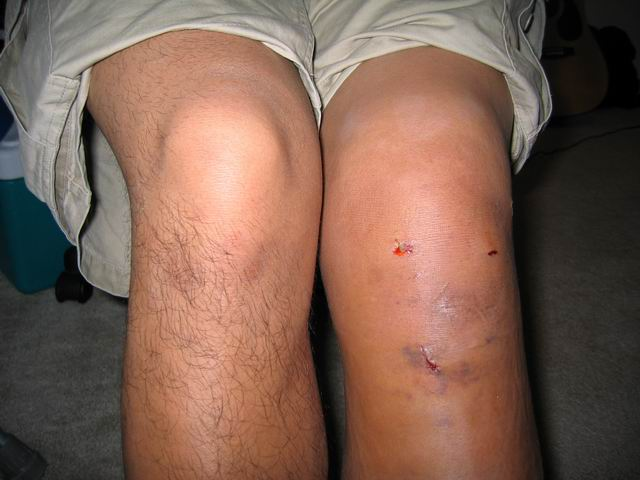 acl reconstruction surgery Acl reconstruction is a complex process, and although the success rate of acl reconstruction is generally 85 - 95%, there are times when the reconstruction is.